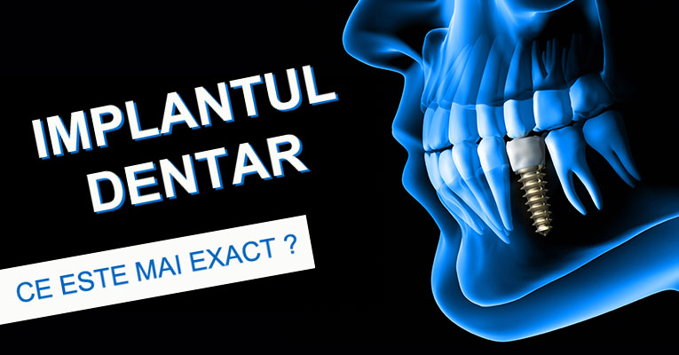 blog-what-is-a-dental-implant.jpg