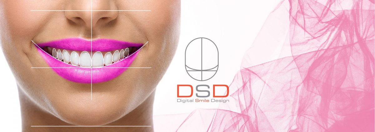 digital-smile-design-dsd-top-1200x425.jpg